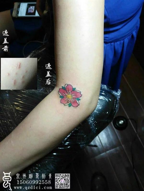 樱花遮盖烟疤 - 泉州雕良刺青图片