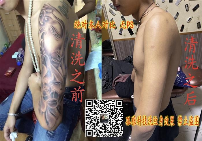 宝坻洗纹身